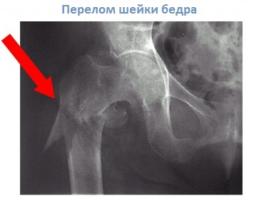 Диагностика и лечение остеопороза в Киеве опытным врачем