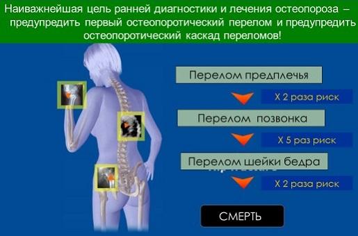 Лечение остеопороза домашних условиях