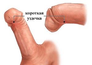 Подрезание на пенисе