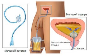 Prostatit katéter